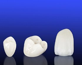 all-ceramic dental crown