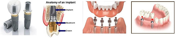 anatomy of implant