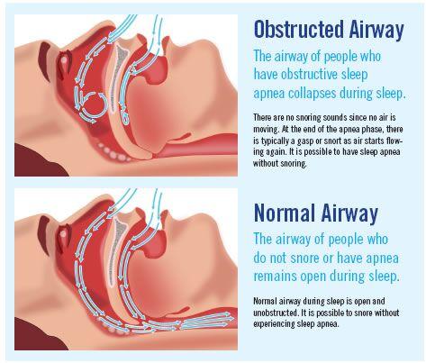 Sleep Apnea Bothell | Snoring Treatment | Annigan Dental