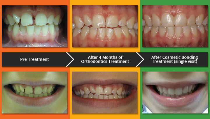 orthodontics before after and cosmetic bonding