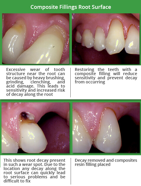 composite fillings root surface before and after
