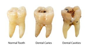 Dentist in Bothell showing different stages of decay.